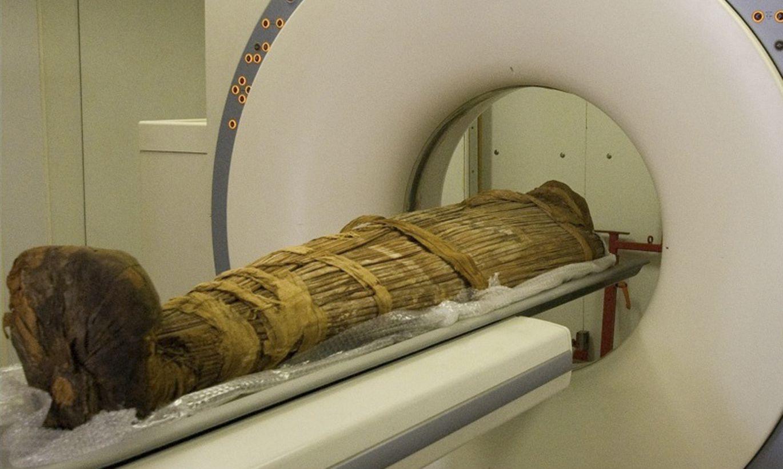500 gadu senas Grenlandes mūmijas un ateroskleroze
