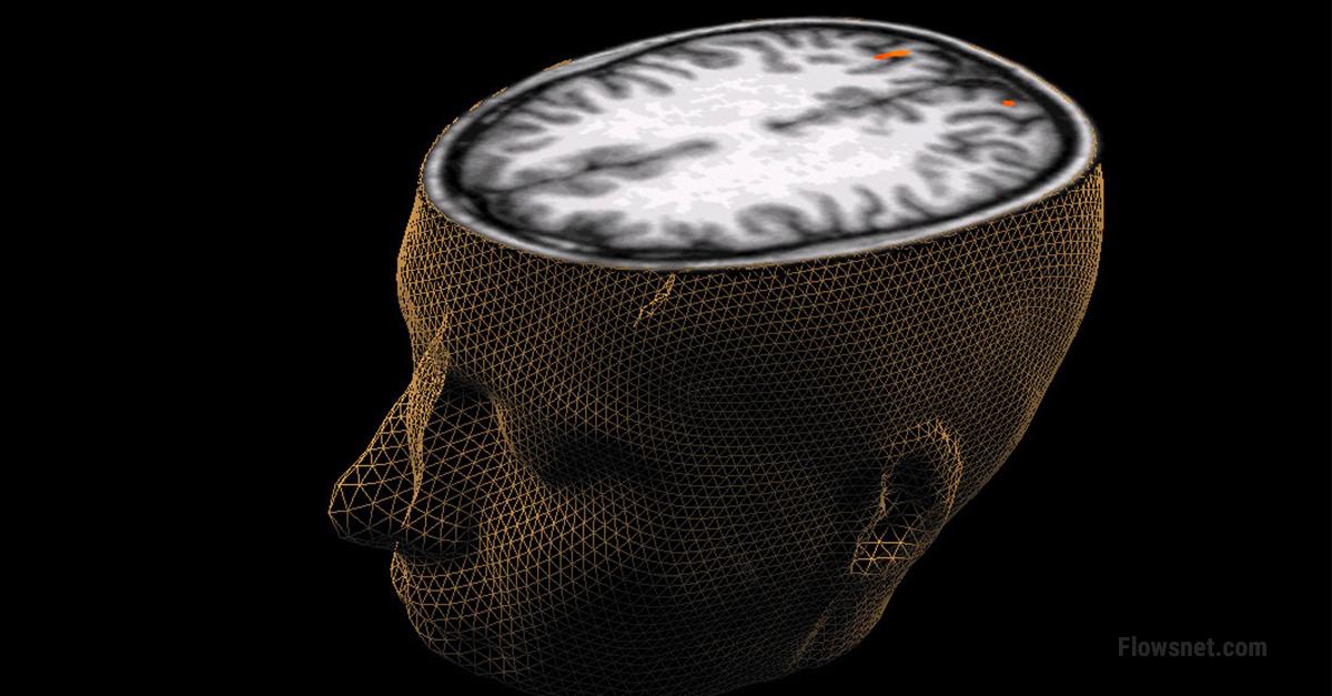 Zinātnieki: sieviešu smadzenes ir trīs gadus jaunākas nekā vīriešu